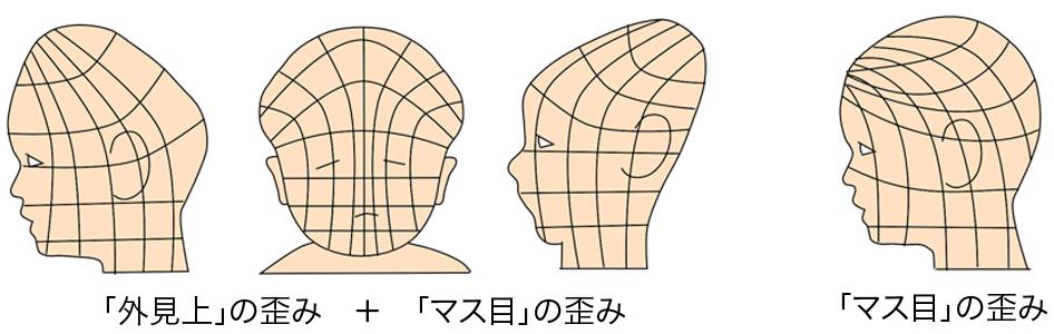 赤ちゃん頭の形 絶壁 三角 つぶれ