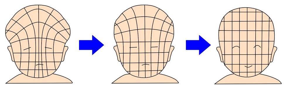 赤ちゃん頭の形 つぶれ