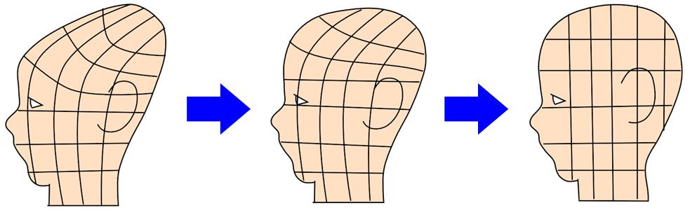 赤ちゃん頭の形 三角