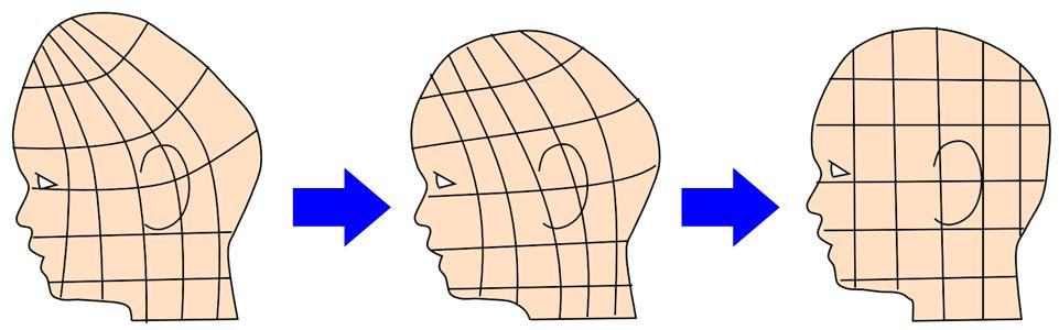 赤ちゃん頭の形 絶壁