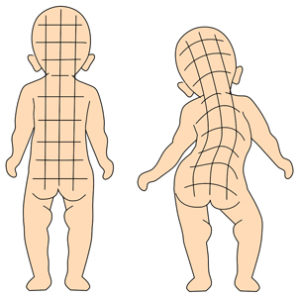 赤ちゃん 側湾症 姿勢が悪い