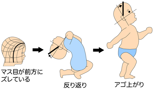赤ちゃん 頭の形 反り返り