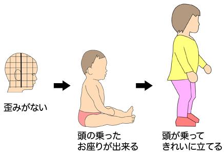 赤ちゃん 頭の形 頭が乗る