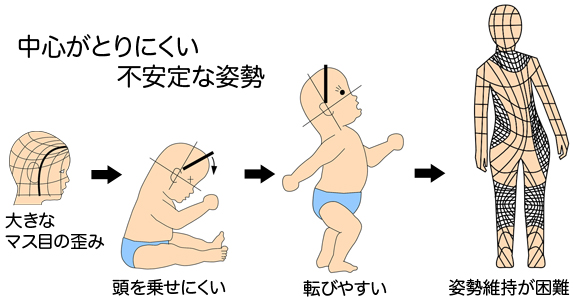 赤ちゃん 頭の形 転びやすい