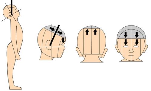 赤ちゃん 頭の形 つま先歩き 尖足