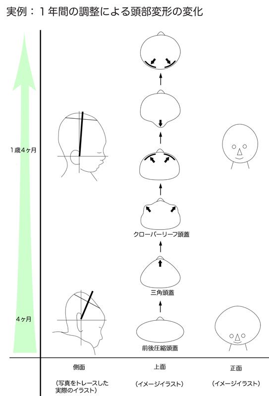 頭の形が変化した実例