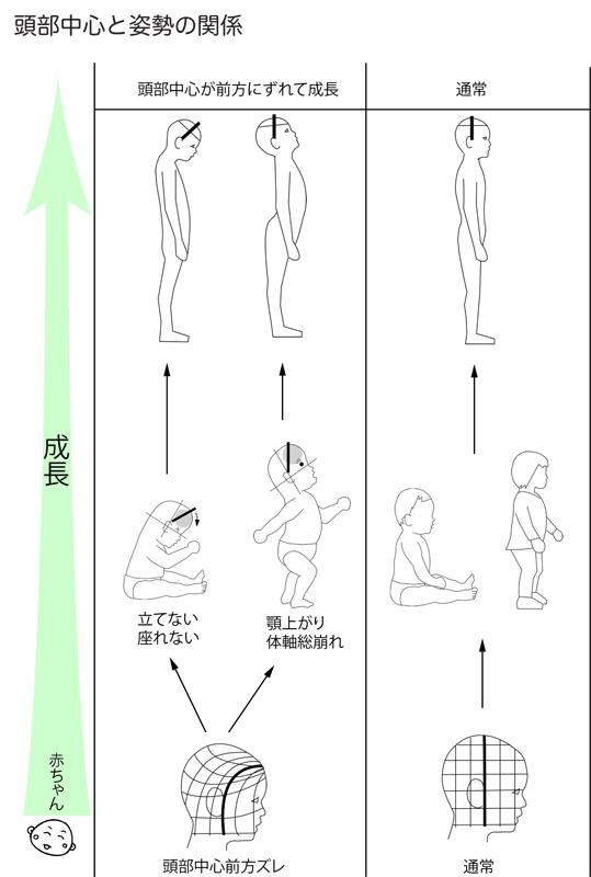 頭部の中心と姿勢の崩れ