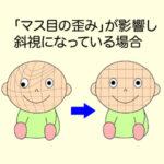 斜視「マス目の歪み」