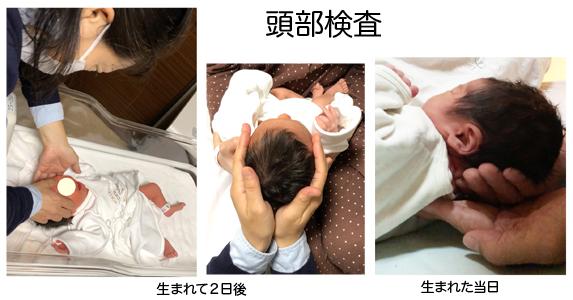 赤ちゃんの頭部の歪み検査