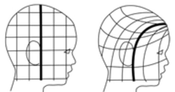 頭 中心線のズレ